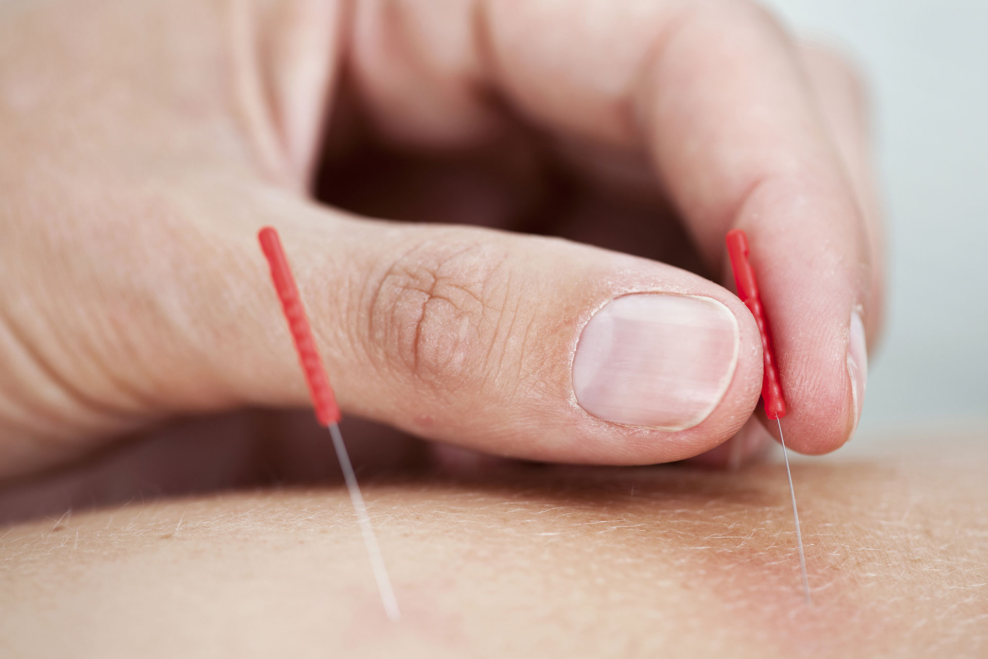 person inserting acupuncture needle